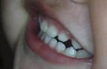 Masalah Serius Yang Memerlukan Perawatan Ortodonti Dini