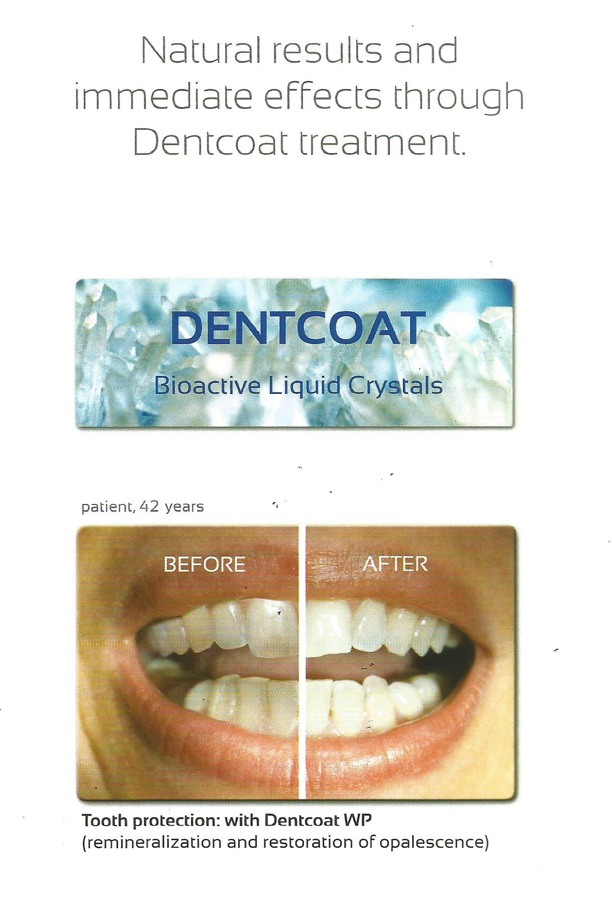 "New Treatment In Golden Dental Center ""Dentcoat"""