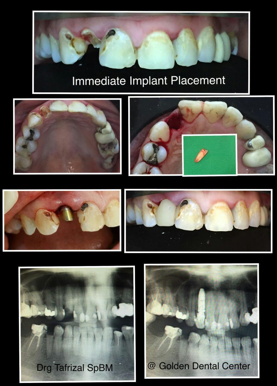 Pemasangan Implan Gigi Secara Langsung