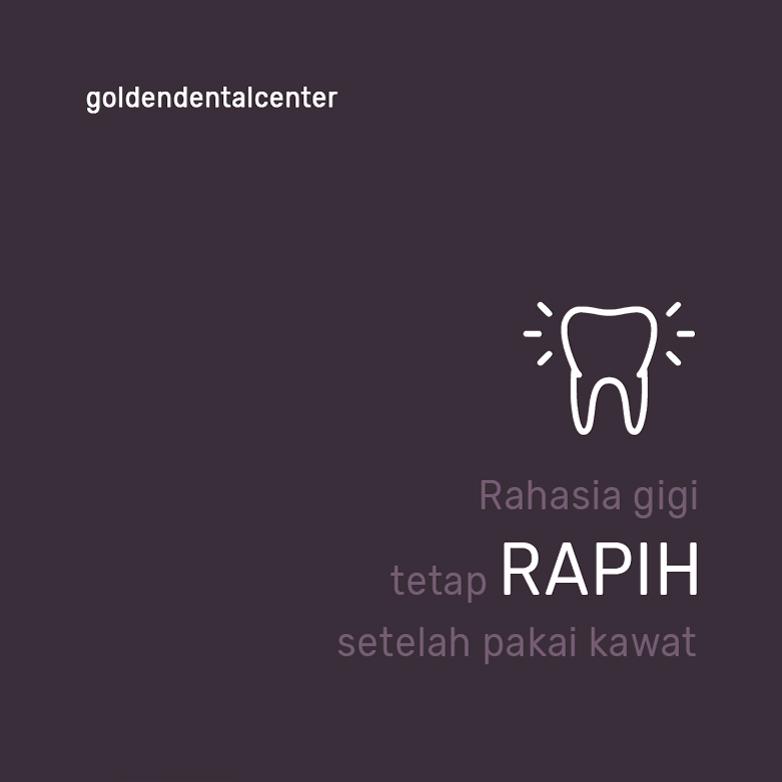Rahasia gigi tetap RAPIH setelah pakai kawat gigi
