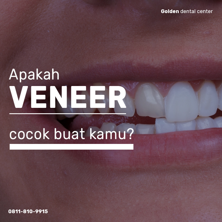 Apakah Veneer cocok untuk kamu?