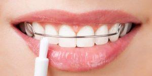 Perawatan Ortodontik Pada Anak-Anak