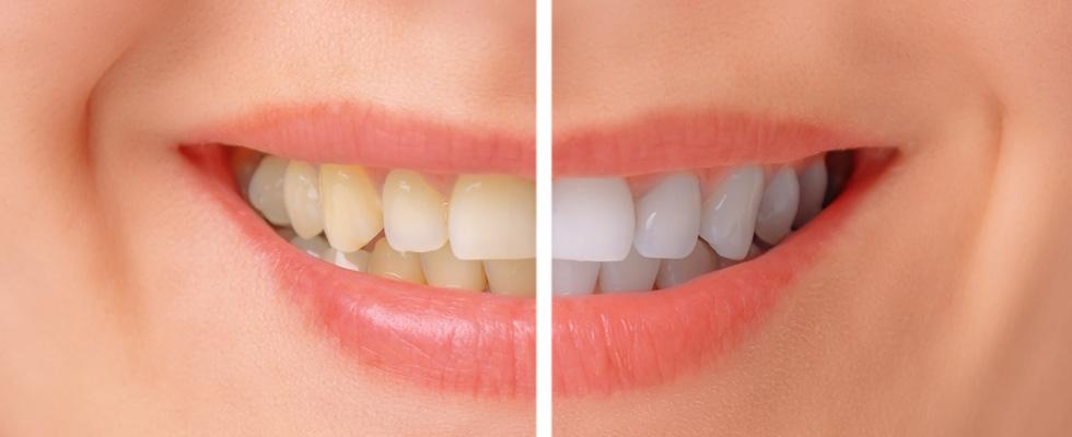 Antisipasi Sensitifitas Dalam Pemutihan Gigi
