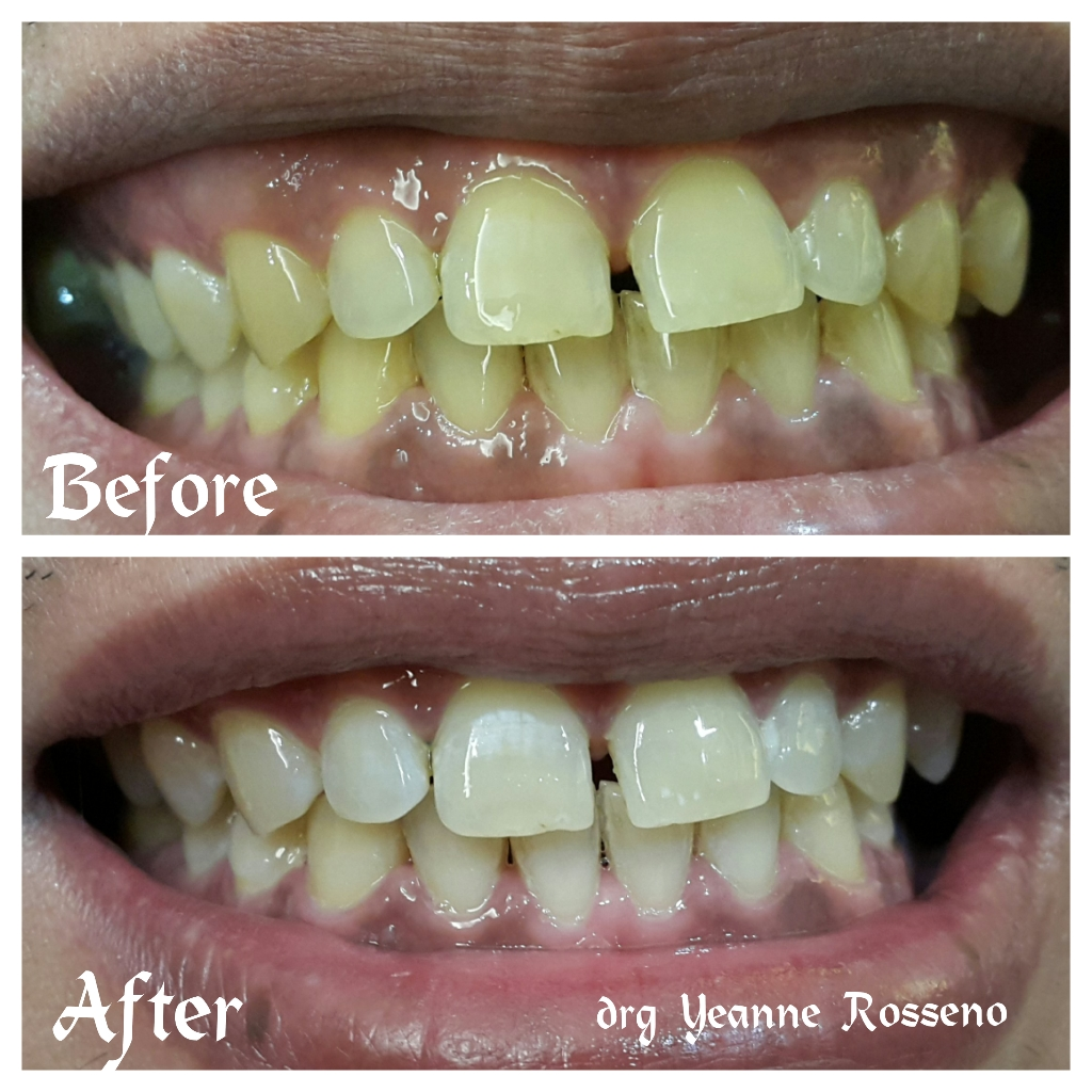 Special Edition for Whitening