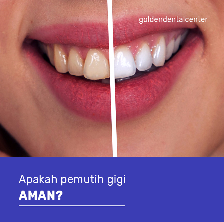 Apakah pemutih gigi aman?