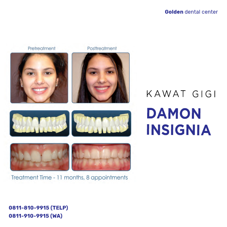 Kawat Gigi Damon Insignia
